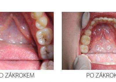 Protetika 2 - před a po