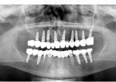 Totální dentální implantát na RTG